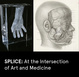 "poster for ""SPLICE: At the Intersection of Art and Medicine"" Exhibition"